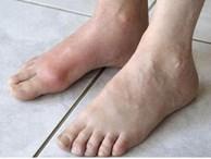 Cậu bé 13 tuổi mắc bệnh gout, nguyên nhân đến từ thức uống mà hầu hết đứa trẻ nào cũng ưa thích