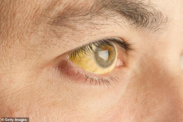 9 dấu hiệu bất thường trên đôi mắt cảnh báo bệnh tật nguy hiểm-3