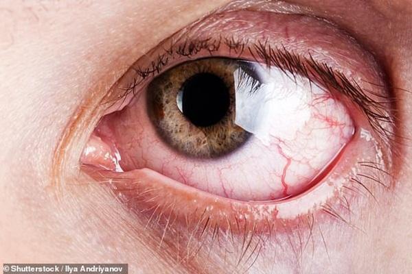 9 dấu hiệu bất thường trên đôi mắt cảnh báo bệnh tật nguy hiểm-4