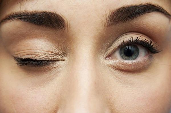 9 dấu hiệu bất thường trên đôi mắt cảnh báo bệnh tật nguy hiểm-5