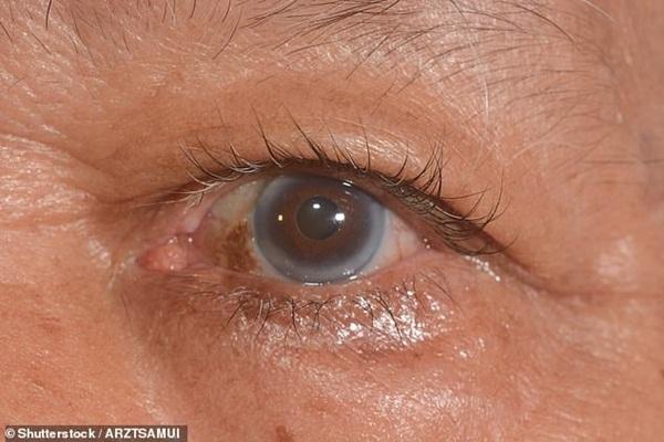 9 dấu hiệu bất thường trên đôi mắt cảnh báo bệnh tật nguy hiểm-7