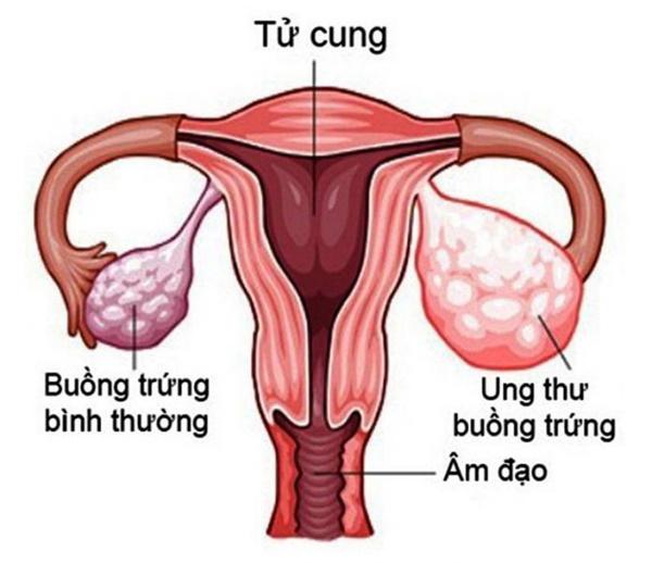 Nhiều trẻ chưa 15 tuổi đã mắc ung thư buồng trứng, đừng chủ quan khi thấy dấu hiệu này-1