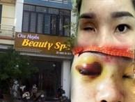 Vụ cô gái bị mù vĩnh viễn sau khi nâng mũi: Cơ sở làm đẹp từng bị yêu cầu dừng hoạt động 2 lần nhưng vẫn làm liều