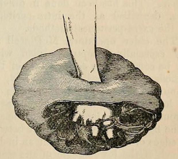 Trùm cuối của các loại u: Phát triển không theo quy luật nào, lại còn... mọc được cả răng lẫn tóc-4
