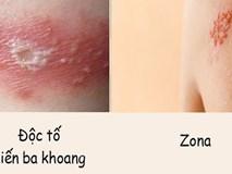 Phân biệt vết thương do kiến ba khoang với viêm da do zona để tránh dùng sai thuốc khiến bệnh càng khó chữa