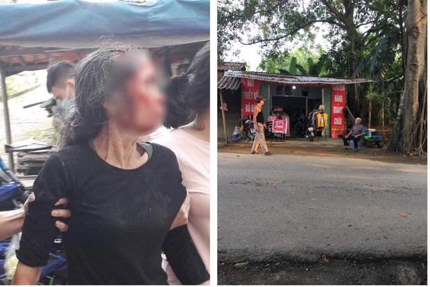 Phú Thọ: Con rể cũ chém mẹ vợ nguy kịch trong lúc cãi vã-1