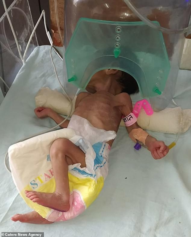 Bị chôn sâu gần 1 mét dưới đất, bé gái 3 ngày tuổi gây ngỡ ngàng khi còn sống-2