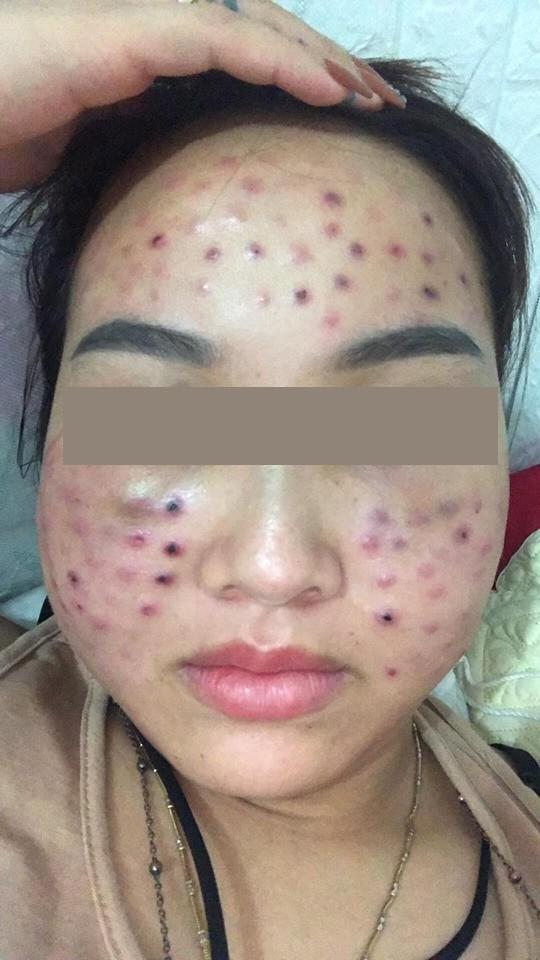 Tiêm căng bóng da tại một spa cỏ, cô gái nhận cái kết cay đắng với tình trạng mặt thâm rỗ như tổ ong-2
