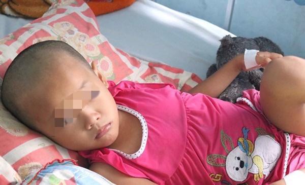 Cha mẹ chủ quan, bé gái suýt chết vì chấn thương sọ não sau té ngã-2