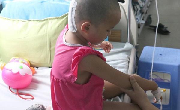 Cha mẹ chủ quan, bé gái suýt chết vì chấn thương sọ não sau té ngã-3