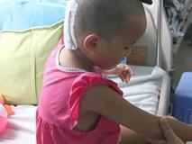 Cha mẹ chủ quan, bé gái suýt chết vì chấn thương sọ não sau té ngã