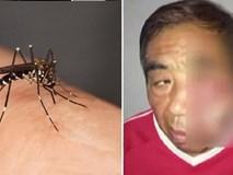 Đêm ngủ bị muỗi đốt, chỉ vì làm việc này mà người đàn ông bị nhiễm trùng, hoại tử tận xương, suýt mất mạng