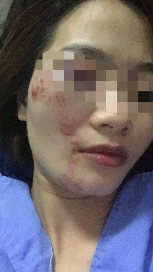 Nhắc không nói tục, nữ phụ xe buýt bị 4 thanh niên đánh bầm giập mặt đúng ngày 20/10-2