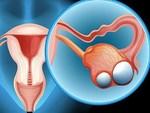 Những nhóm người dễ bị ung thư dạ dày: 3 việc cần làm ngay để ngăn ngừa mắc bệnh-3
