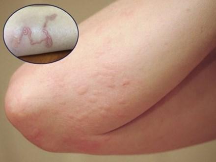 Ba mẹ con bị ngứa râm ran khắp người, đi khám phát hiện cùng mắc chung một loại bệnh