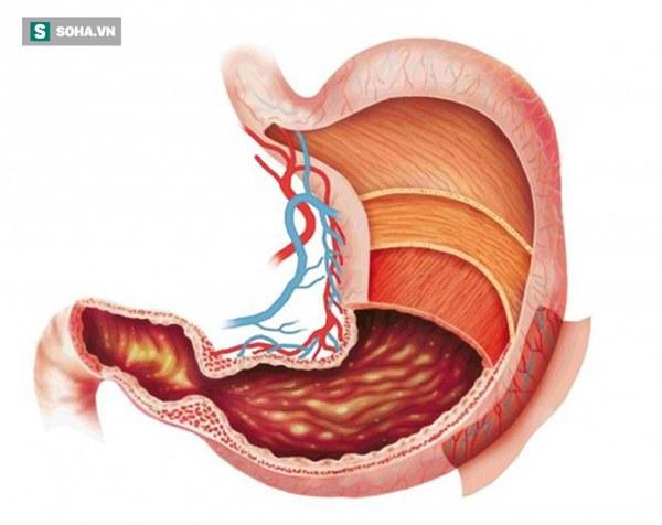 Những nhóm người dễ bị ung thư dạ dày: 3 việc cần làm ngay để ngăn ngừa mắc bệnh-2