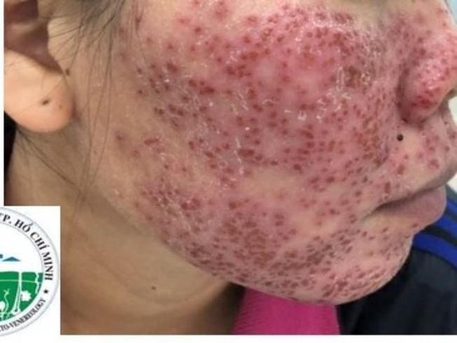 """Tự ý lột da mặt để mong sở hữu làn da đẹp bằng những cách được đồn thổi trên MXH, nhiều chị em lĩnh hậu quả cay đắng với gương mặt tan nát""""-2"""