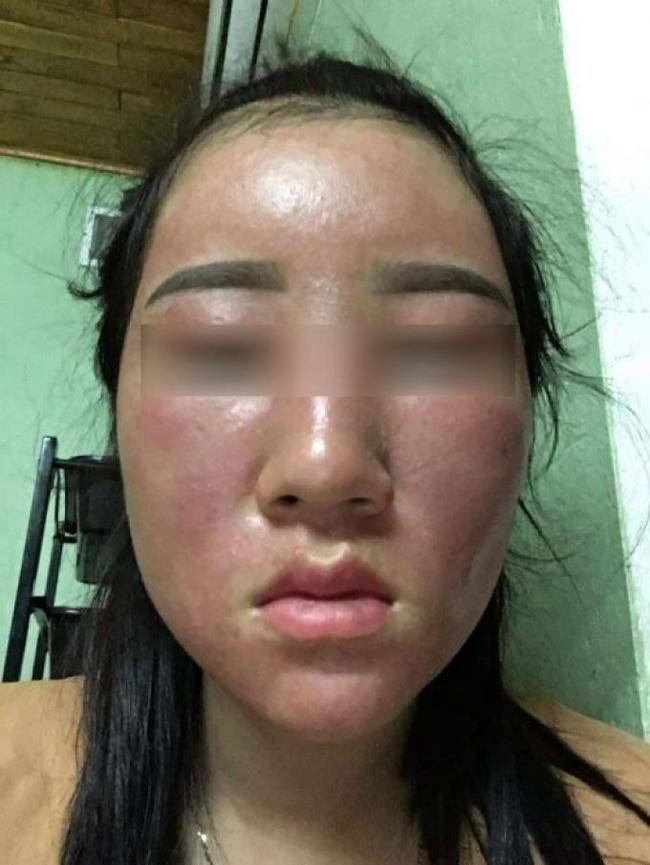 """Tự ý lột da mặt để mong sở hữu làn da đẹp bằng những cách được đồn thổi trên MXH, nhiều chị em lĩnh hậu quả cay đắng với gương mặt tan nát""""-3"""