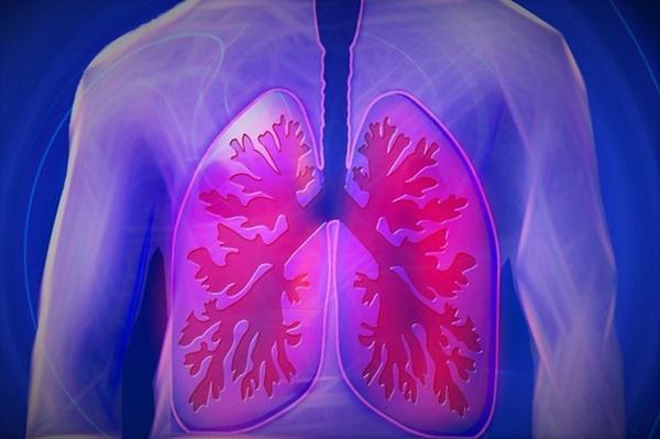 Người phụ nữ được chẩn đoán ung thư phổi do không mang vật dụng này theo khi ra đường, bác sĩ nhắc nhở việc mà ai cũng nên làm-1