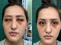 Thêm 1 phụ nữ kêu cứu sau khi đi cắt mí mắt bị hỏng: Đây là những điều bạn cần nhớ trước khi làm phẫu thuật này