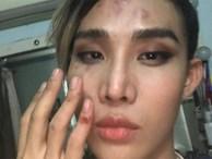 Tài xế xe ôm công nghệ nghi đánh đập, hành hung một người mẫu tại Sài Gòn