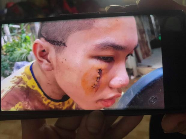 """Đại diện Tịnh thất Bồng Lai"""" nói gì khi bị tố giấu"""" cô gái 22 tuổi khiến người thân vào đập phá, đánh bị thương tu sĩ?-6"""