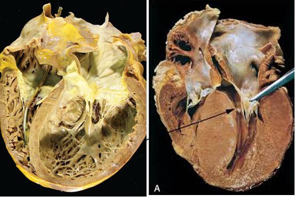 Hà Nội thông báo kết quả điều tra dịch tễ 2 ca tử vong do viêm cơ tim-1