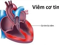 Viêm cơ tim - Một số điều bệnh nhân cần biết: Khi nào thì cần đi khám và những xét nghiệm cần thực hiện
