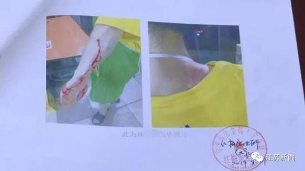 Con gái ế 30 tuổi bị mẹ đánh đến trọng thương, nguyên nhân đằng sau khiến người ta vừa thương, vừa giận nạn nhân-1