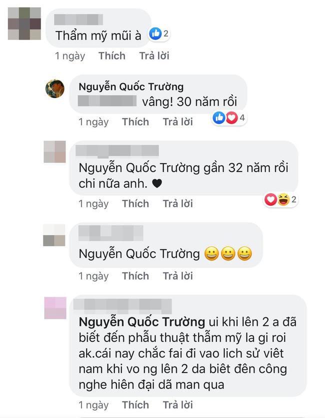 Sau Việt Anh, Quốc Trường vướng nghi án phẫu thuật thẩm mỹ mũi và đây là câu trả lời không ngờ của nam diễn viên-2
