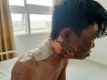 Công an vào cuộc xác minh clip nam thanh niên nghi bị người thân đổ nước sôi lên người gây bỏng nặng-2