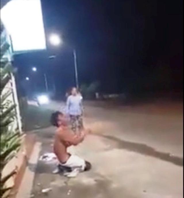 Công an vào cuộc xác minh clip nam thanh niên nghi bị người thân đổ nước sôi lên người gây bỏng nặng-1