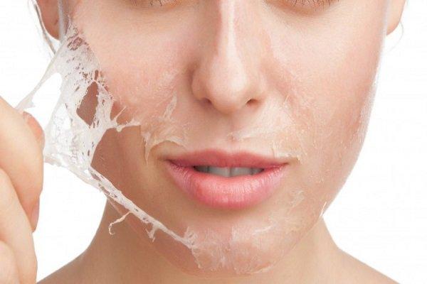 Rùng mình với gương mặt bị bỏng nặng nề sau khi làm đẹp da bằng phương pháp lột da-1