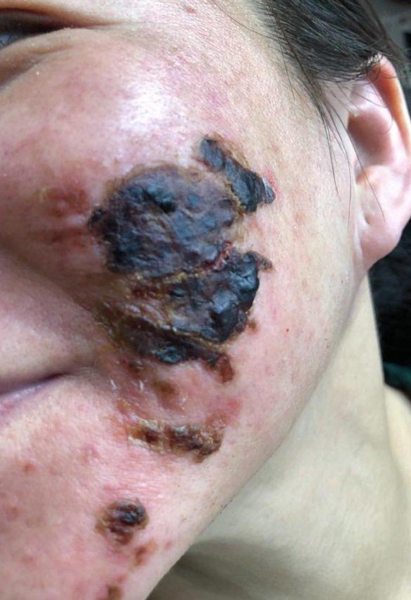 Rùng mình với gương mặt bị bỏng nặng nề sau khi làm đẹp da bằng phương pháp lột da-2