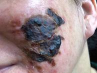 Rùng mình với gương mặt bị bỏng nặng nề sau khi làm đẹp da bằng phương pháp lột da
