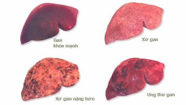 Giám đốc BV K hướng dẫn cách phòng bệnh ung thư có tỷ lệ mắc mới nhiều nhất tại Việt Nam-1