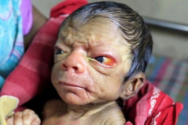Cả ê-kíp bác sĩ đỡ đẻ choáng váng khi em bé chào đời trong hình hài của một ông lão 80 tuổi-2
