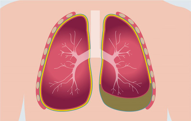 Sau khi đi massage châm cứu, cô gái 24 tuổi nhập viện và phát hiện phổi trái đã bị co lại 30%-2