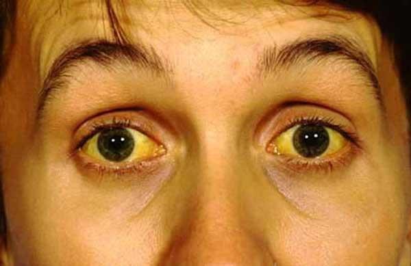 Xuất hiện 4 đặc điểm này trên mặt, kiểm tra gan càng sớm càng tốt để khỏi hối hận thì đã muộn-3