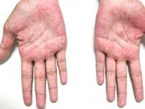 """10 biểu hiện bất thường trên tay đang ngầm """"tố cáo"""" hàng loạt vấn đề sức khỏe mà bạn không ngờ đến"""