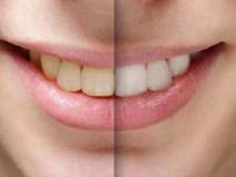 Bị sâu răng và răng ố vàng dù không ăn uống đồ ăn có axit, người đàn ông giật mình khi bác sĩ phát hiện mắc bệnh ung thư dạ dày