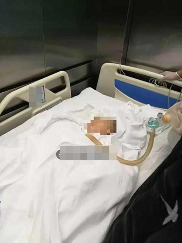 Vật thể lạ rơi từ tầng 22 trúng cậu bé 3 tuổi, người mẹ hoảng loạn ôm chặt đầu đầy máu của con đang khóc lóc-3