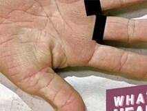 Cảnh báo: Nếu xuất hiện dấu hiệu này ở lòng bàn tay, rất có thể đã bị ung thư phổi!