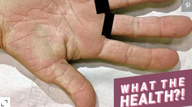 Cảnh báo: Nếu xuất hiện dấu hiệu này ở lòng bàn tay, rất có thể đã bị ung thư phổi!-1