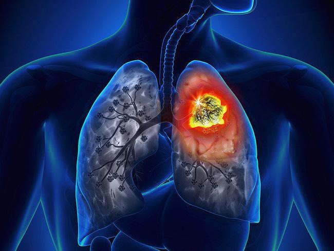 Cảnh báo: Nếu xuất hiện dấu hiệu này ở lòng bàn tay, rất có thể đã bị ung thư phổi!-2