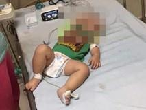 3 chị em ở Hà Nội tử vong vì bệnh Whitmore