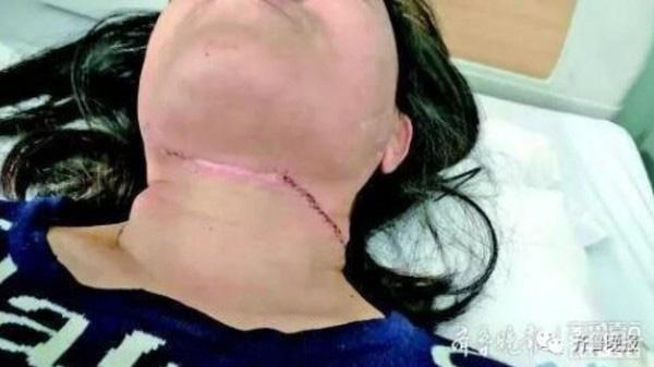 Hơn 30 người đi đường bị cứa cổ sâu hơn 1,5cm, mọi người đều hoang mang khi biết được danh tính thủ phạm-1