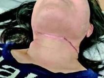 Hơn 30 người đi đường bị cứa cổ sâu hơn 1,5cm, mọi người đều hoang mang khi biết được danh tính