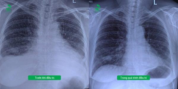 BV Thu Cúc kiểm soát thành công khối u phổi ác tính-2