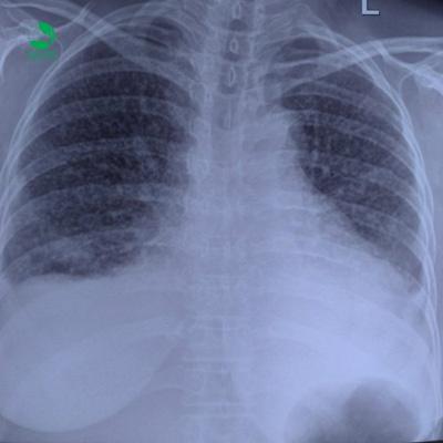 BV Thu Cúc kiểm soát thành công khối u phổi ác tính-1